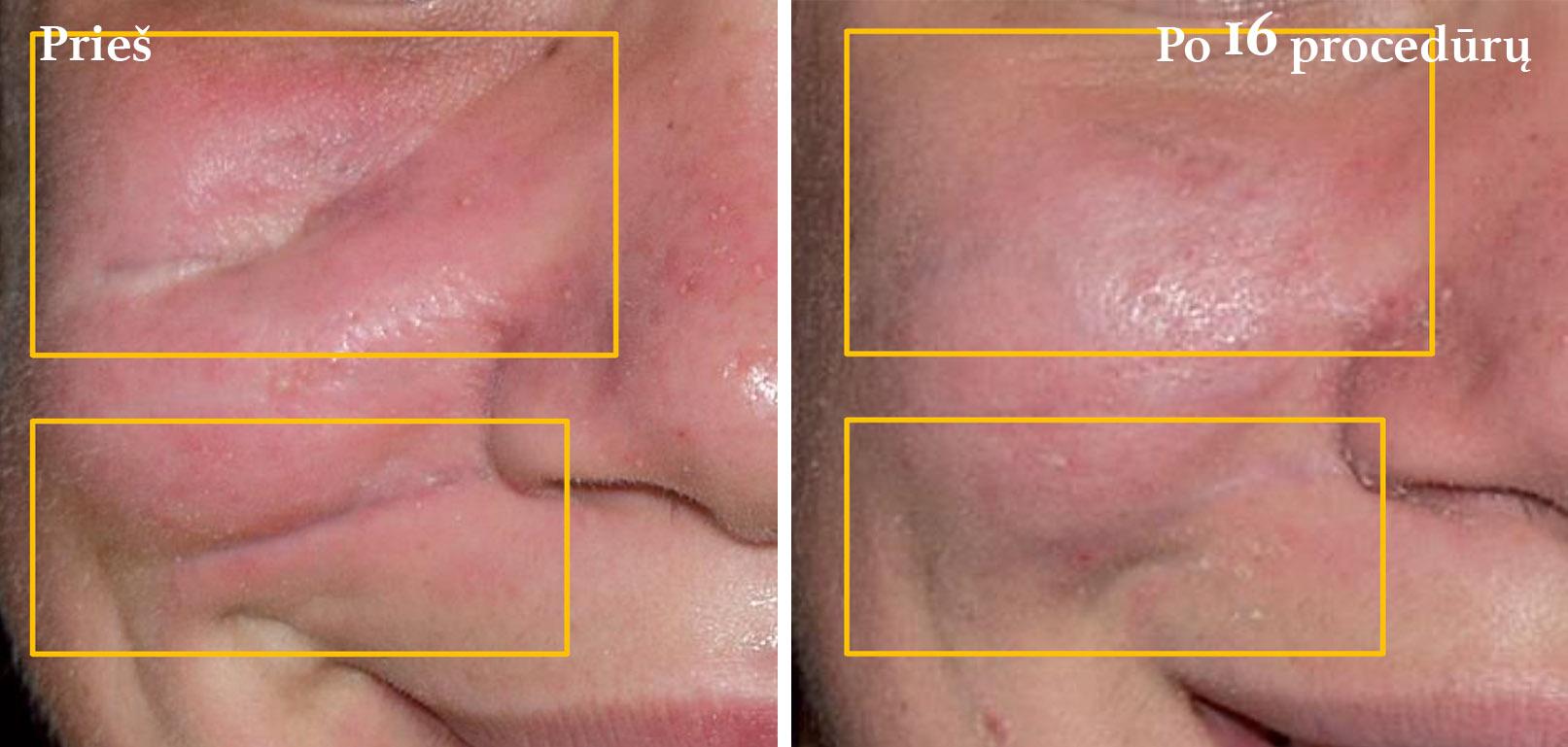 icoone-laser-geriausia-kuno-veido-procedura-gydimas-vilniuje-jauninanti-oda-jauninanti