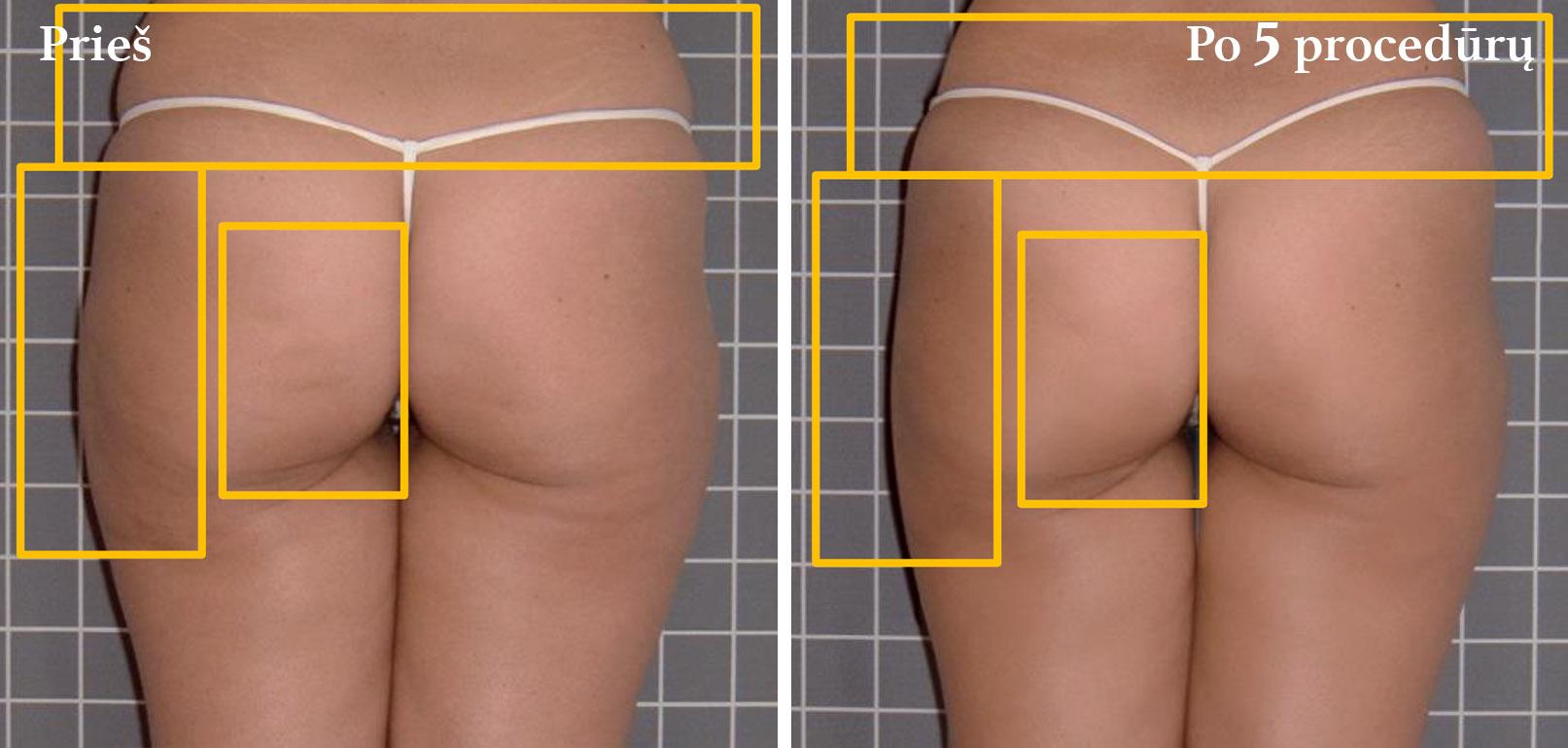 icoone-laser-geriausia-kuno-veido-procedura-gydimas-vilnius-klinika-celiulitas
