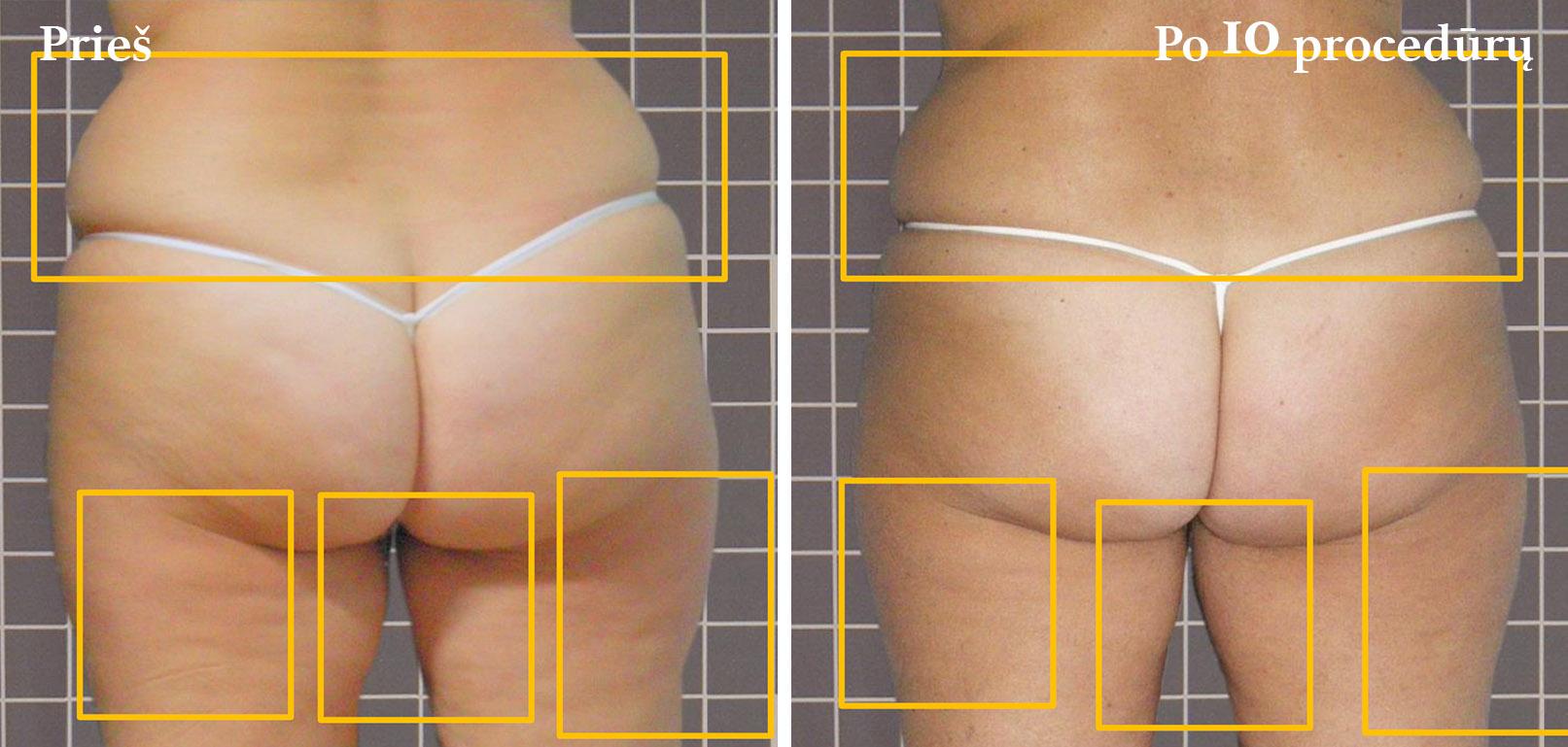 icoone-laser-geriausia-kuno-veido-procedura-gydimas-vilnius-klinika