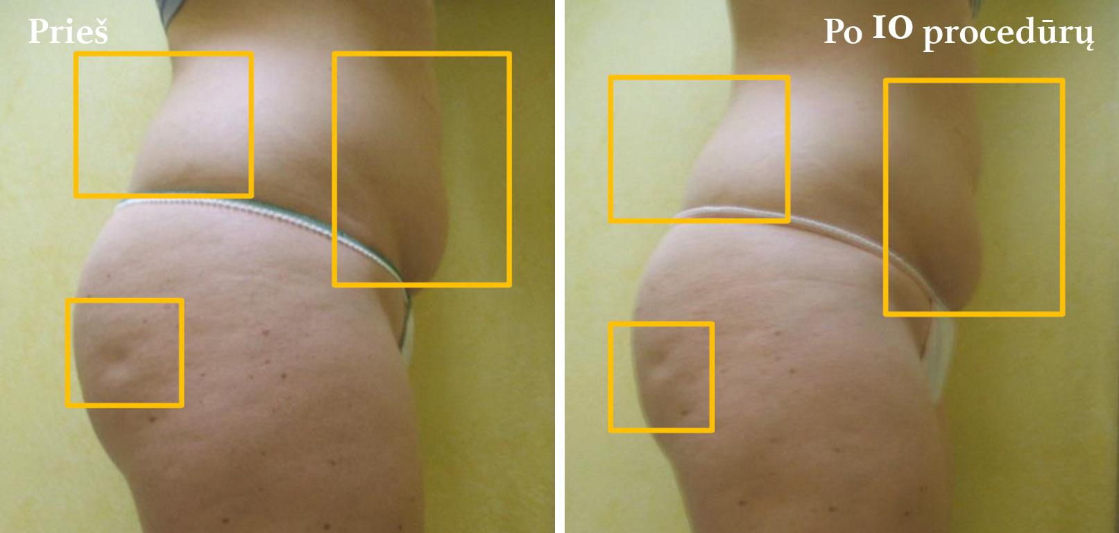 icoone-laser-kuno-veido-procedura-vilniuje-pigiau-geriausia-klinika