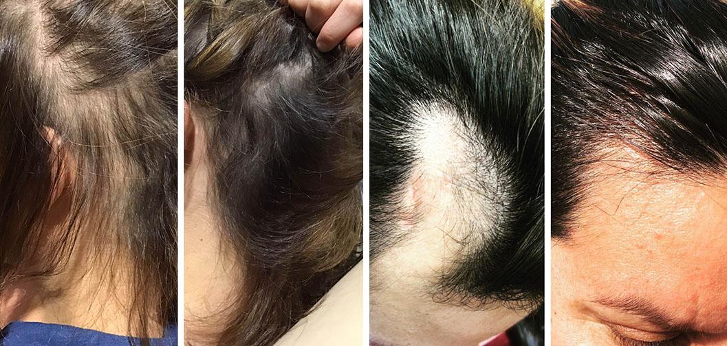 geriausia-plauku-gydimo-procedura-nuo-plikimo-plauku-retejimo-slinkimo-hair-prp-akcija