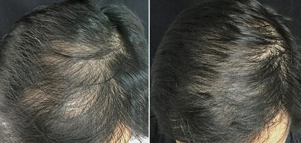 geriausia-plauku-gydimo-procedura-nuo-plikimo-plauku-retejimo-slinkimo-hair-prp-vyrams