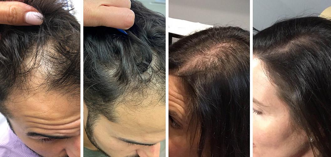 geriausia-plauku-gydimo-procedura-nuo-plikimo-plauku-retejimo-vyrams-slinkimo-hair-prp-akcija
