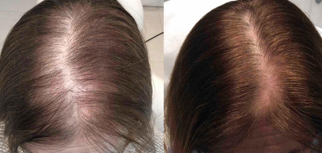 pigiau-geriausia-plauku-gydimo-procedura-nuo-plikimo-plauku-retejimo-slinkimo-hair-prp