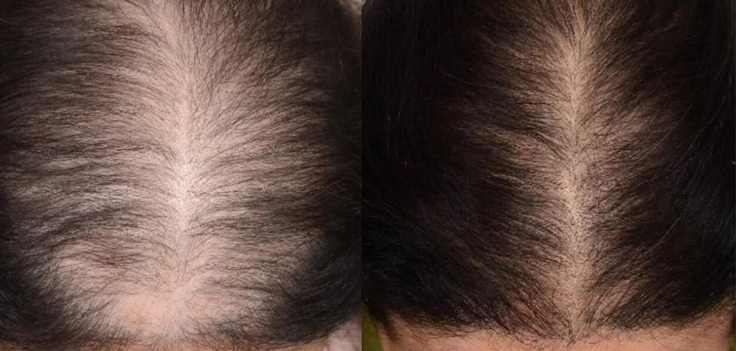 prp-moterims-geriausia-plauku-gydimo-procedura-nuo-plikimo-plauku-retejimo-slinkimo-hair